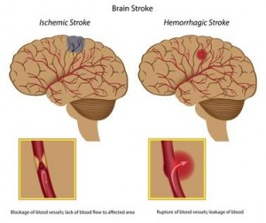 Brain stroke, eps8